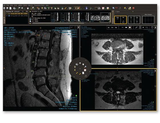 IntelePACS radiology images