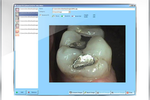 Maxident screenshot: Save high quality digital images per tooth