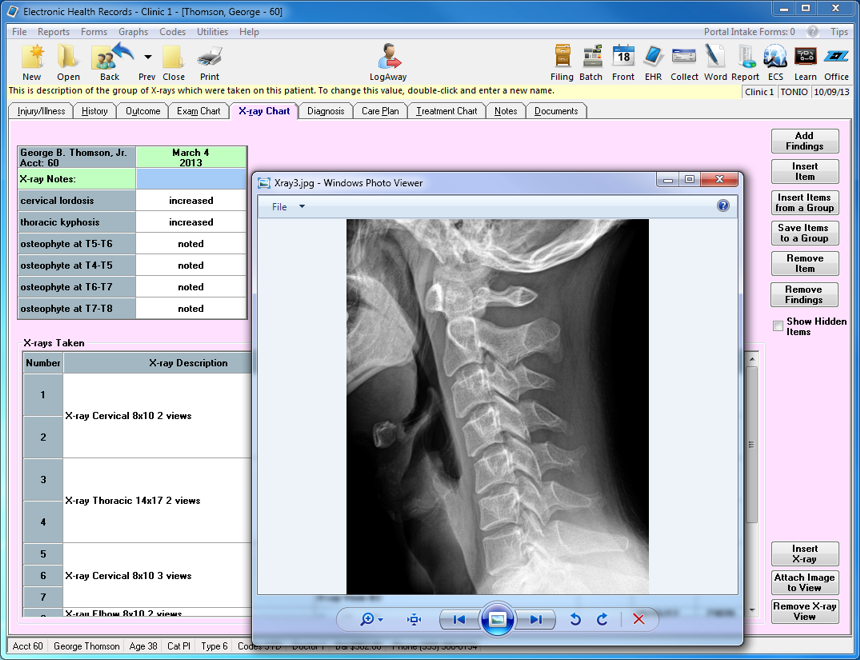 X-ray view and findings