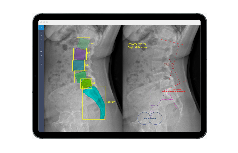 UNITY AI-based medical image analysis