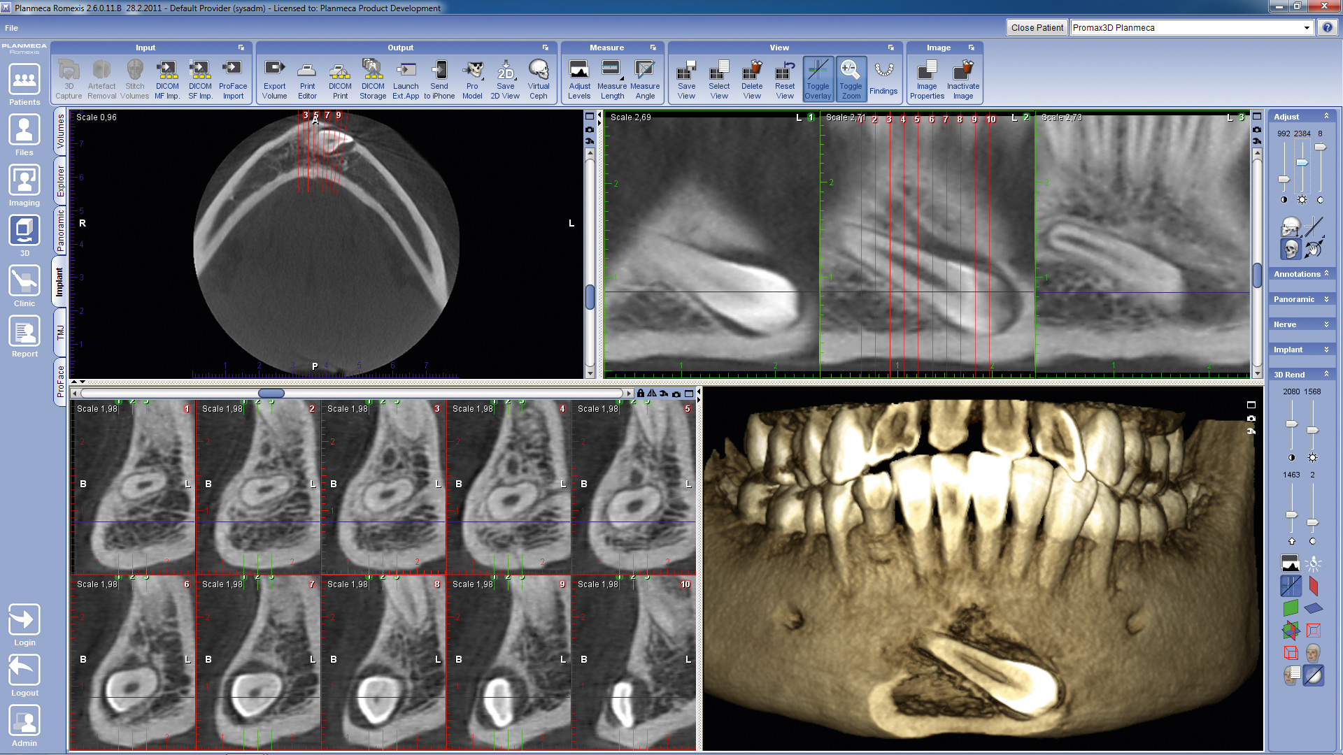 3D implant viewer
