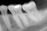 AeronaClinic screenshot: AeronaDental x-ray imaging screenshot