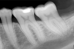 AeronaDental x-ray imaging screenshot