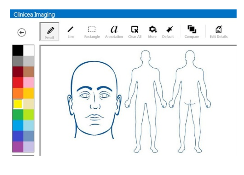 Imaging technology allows users to upload any type of image for a patient, and draw on or annotate them