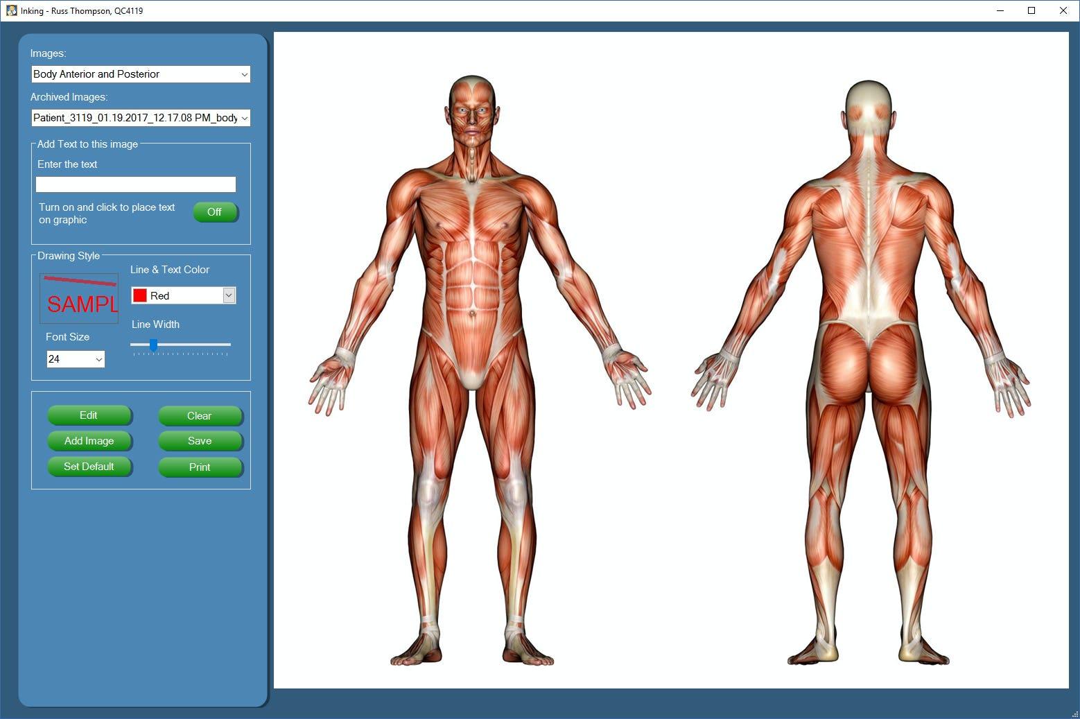 Chiro QuickCharts Software - Body graphic