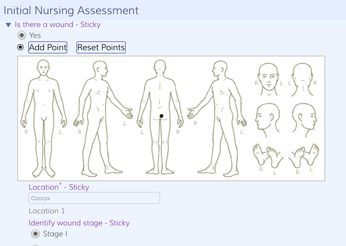 Easy body mapping