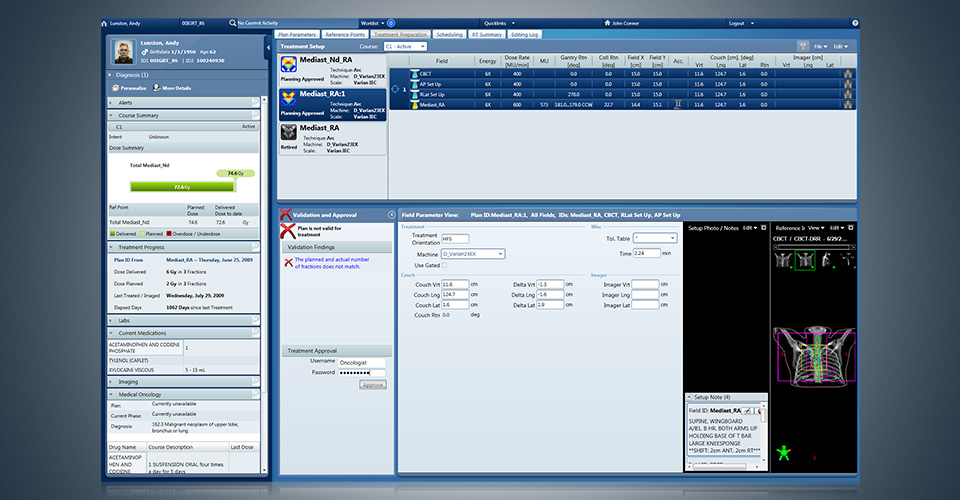 ARIA Clinical Solutions Software - Treatment setup