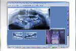 Maxident screenshot: Share images with colleagues for diagnosis and treatment consultation