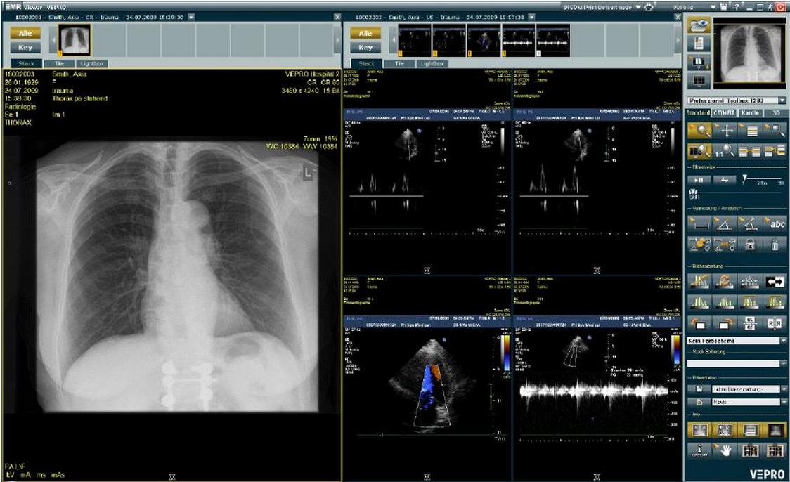 EMR viewer, lungs