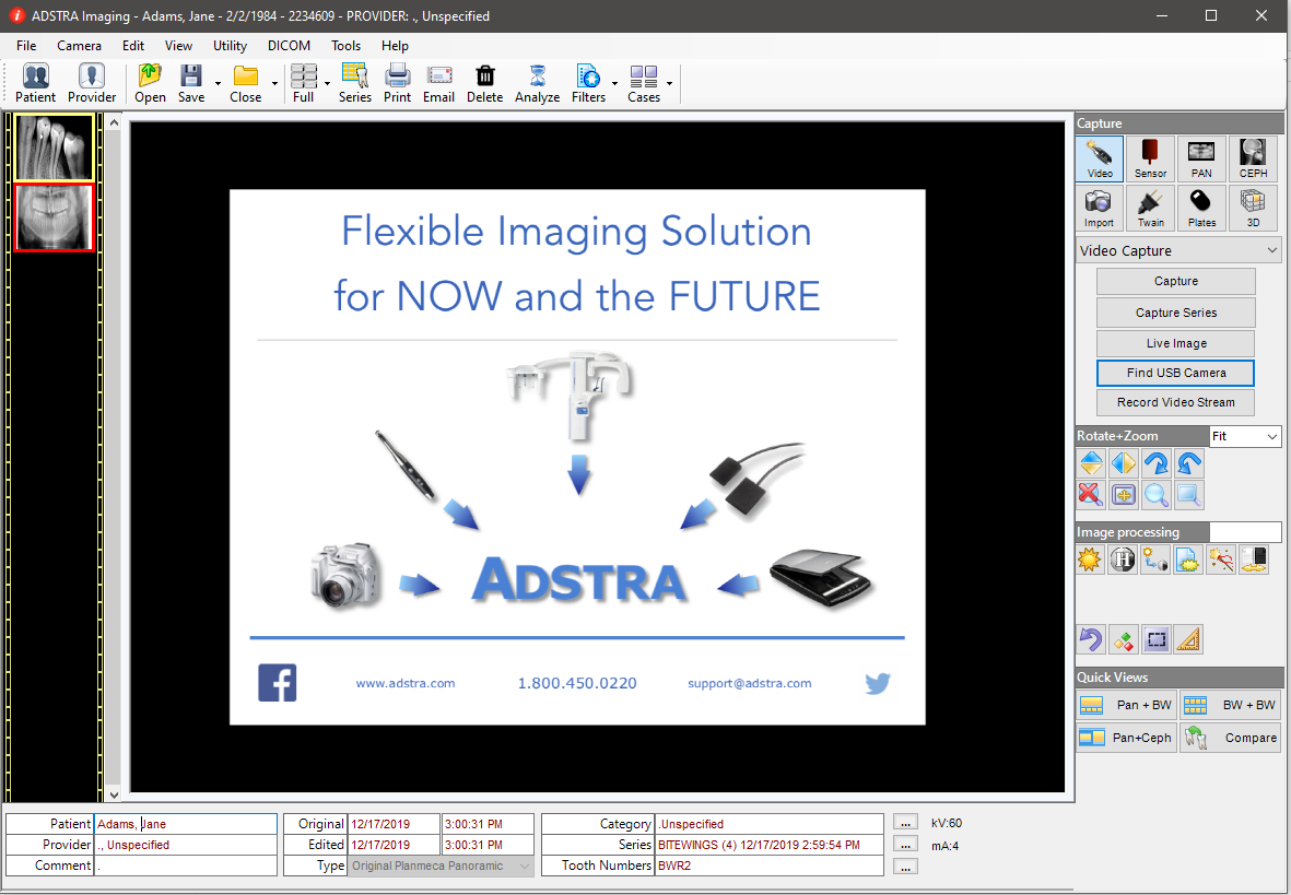 Attach notes to side-by-side dental x-rays using annotation tools included within ADSTRA Imaging