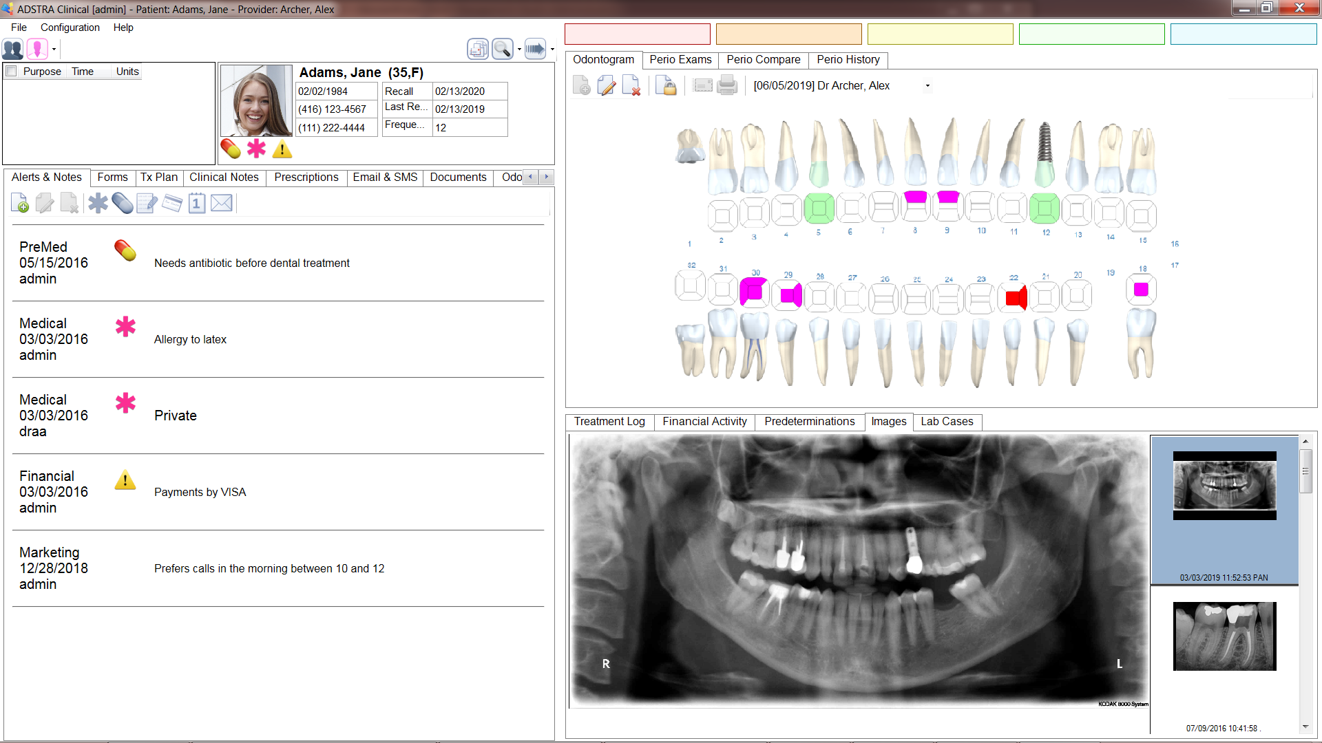 ADSTRA Dental Software screenshot: ADSTRA is an integrated dental software solution with an intuitive, user-friendly interface with tools for managing all aspects of patient care.