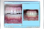 Maxident screenshot: Compare images and view previous treatment history graphically in the odontogram