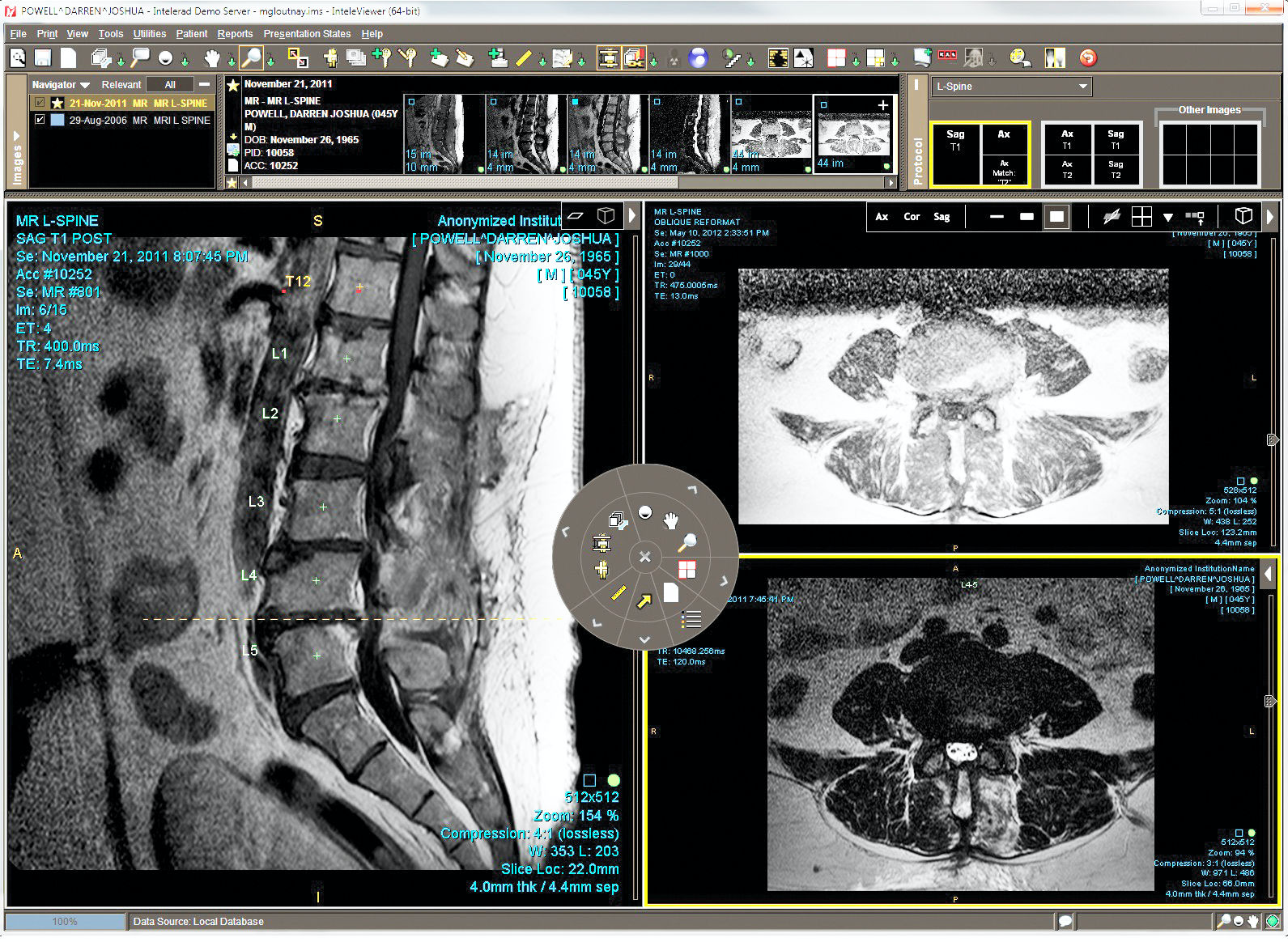 Model information can be viewed along with patient information