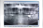 Maxident screenshot: Capture images from different brands of  digital imaging equipment