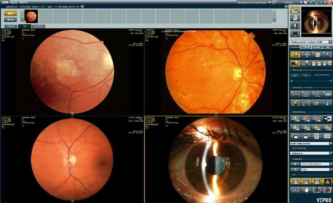 EMR viewer, eye