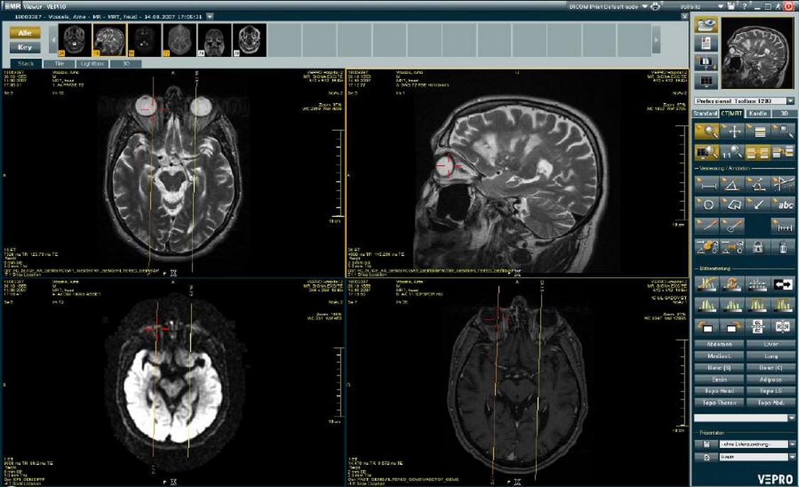 EMR viewer, skull
