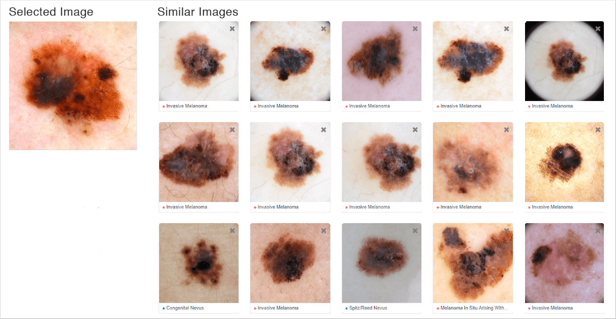 Review visually similar images to your current case to gain deeper clinical insights.
