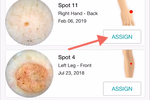 DermEngine screenshot: Assign follow up dermoscopy images in a matter of seconds with the support of DermEngine's Smart Recommendation tool