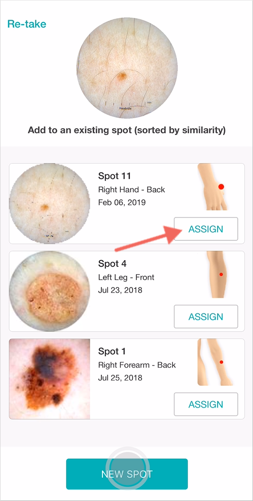 Assign follow up dermoscopy images in a matter of seconds with the support of DermEngine's Smart Recommendation tool