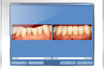 Maxident screenshot: Show patients their dental images chair side with MaxiViewer
