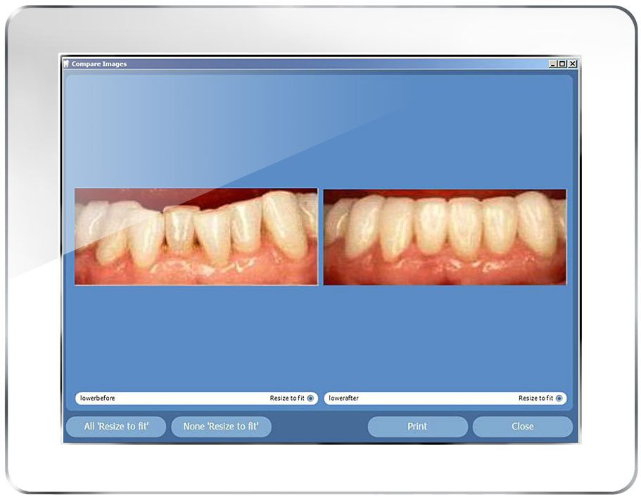 Show patients their dental images chair side with MaxiViewer