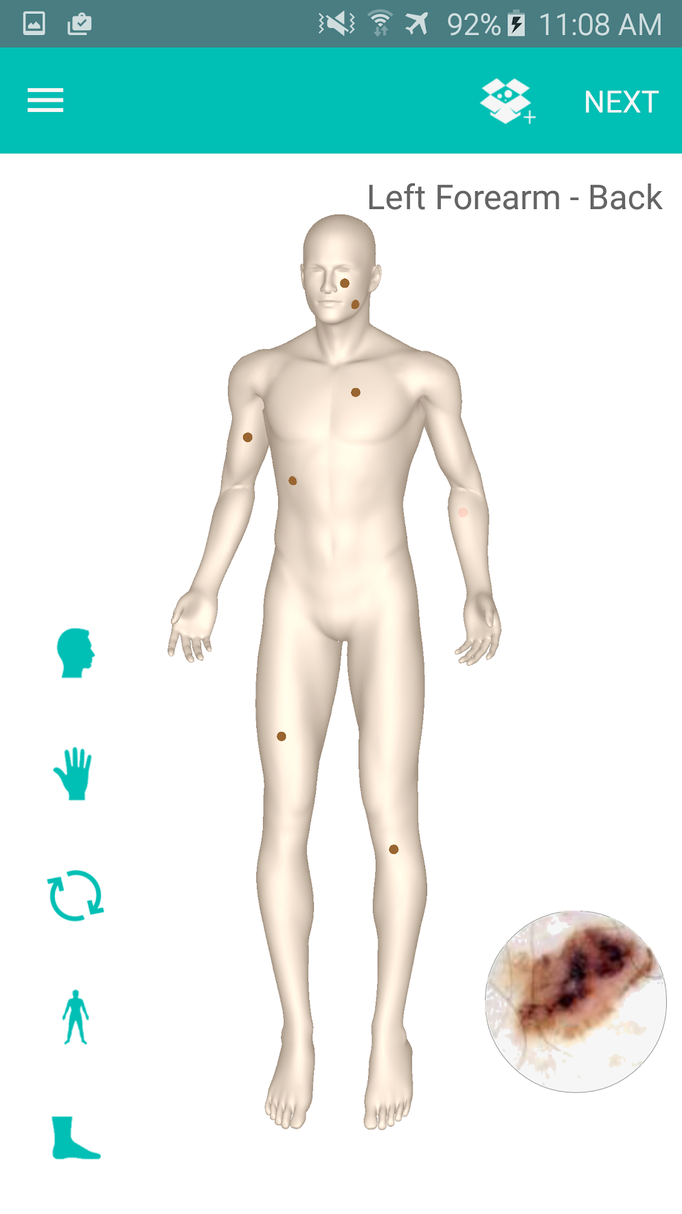 Add, locate, and edit a patient's spot profile with ease using the patient's personal 3D Body Map.