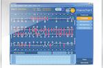 Maxident screenshot: Maxident's electronic dental charting software, MaxiChart