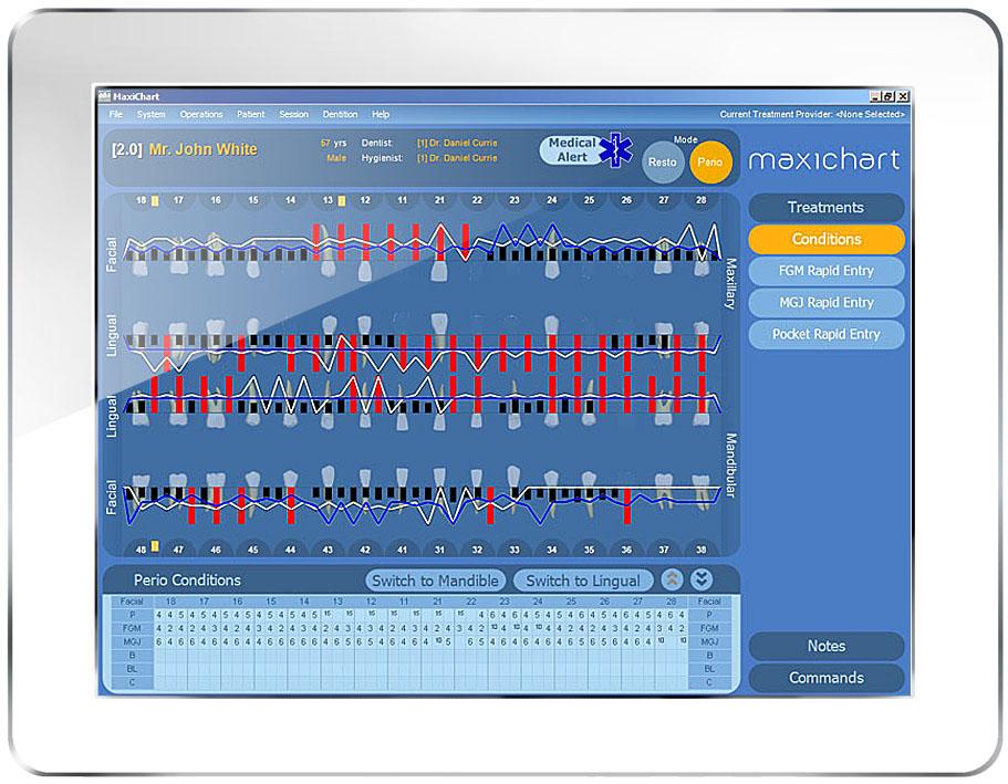 Maxident's electronic dental charting software, MaxiChart