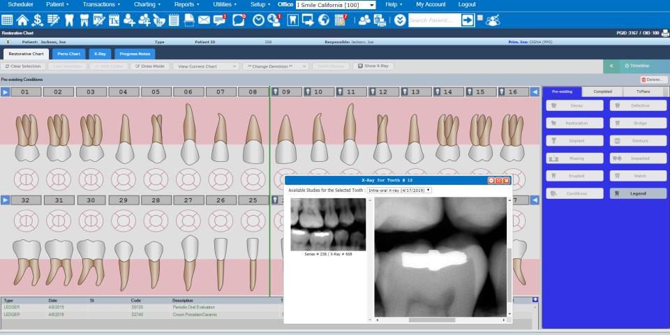 Denticon Software - 2